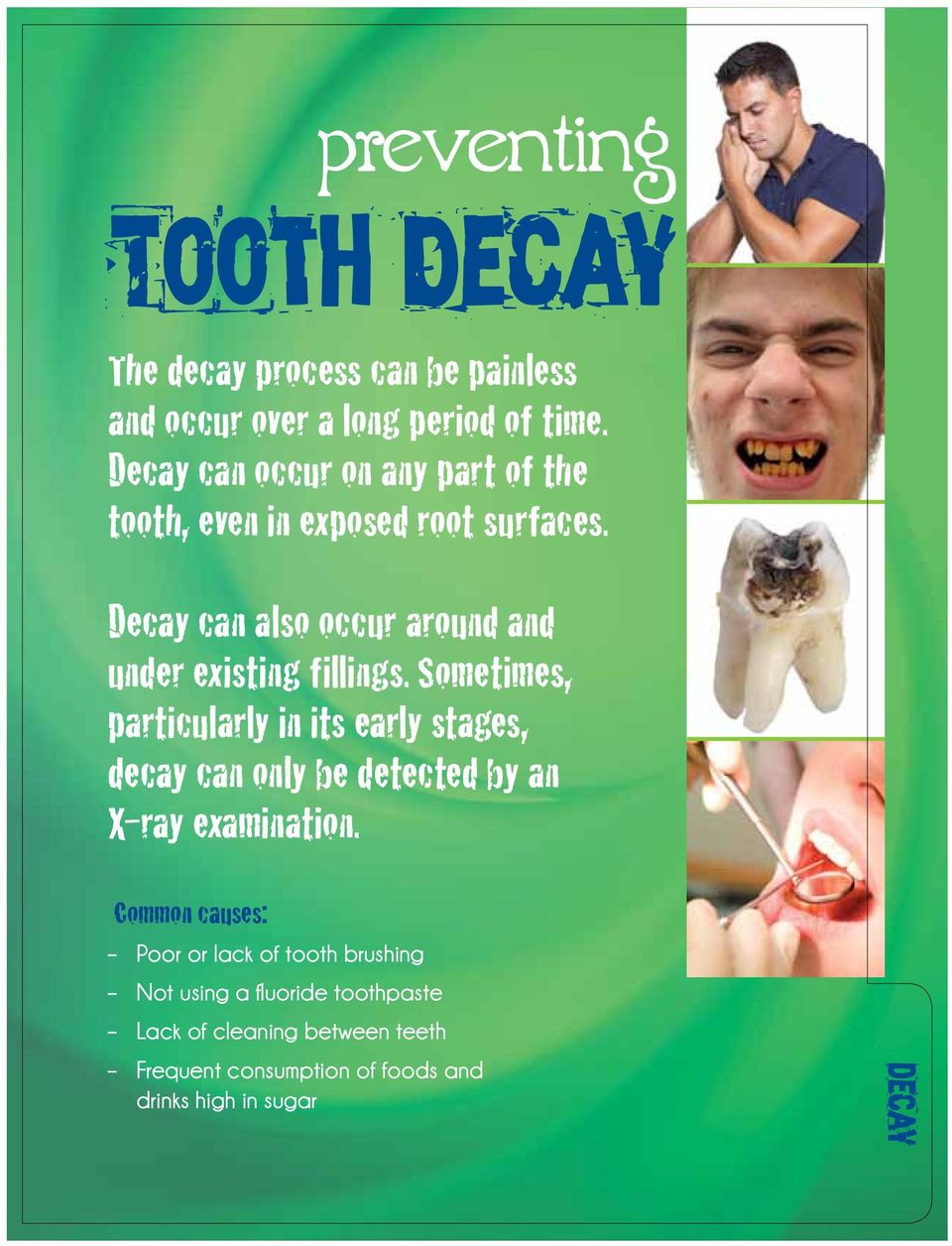 Decay can also occur around and under existing fillings.