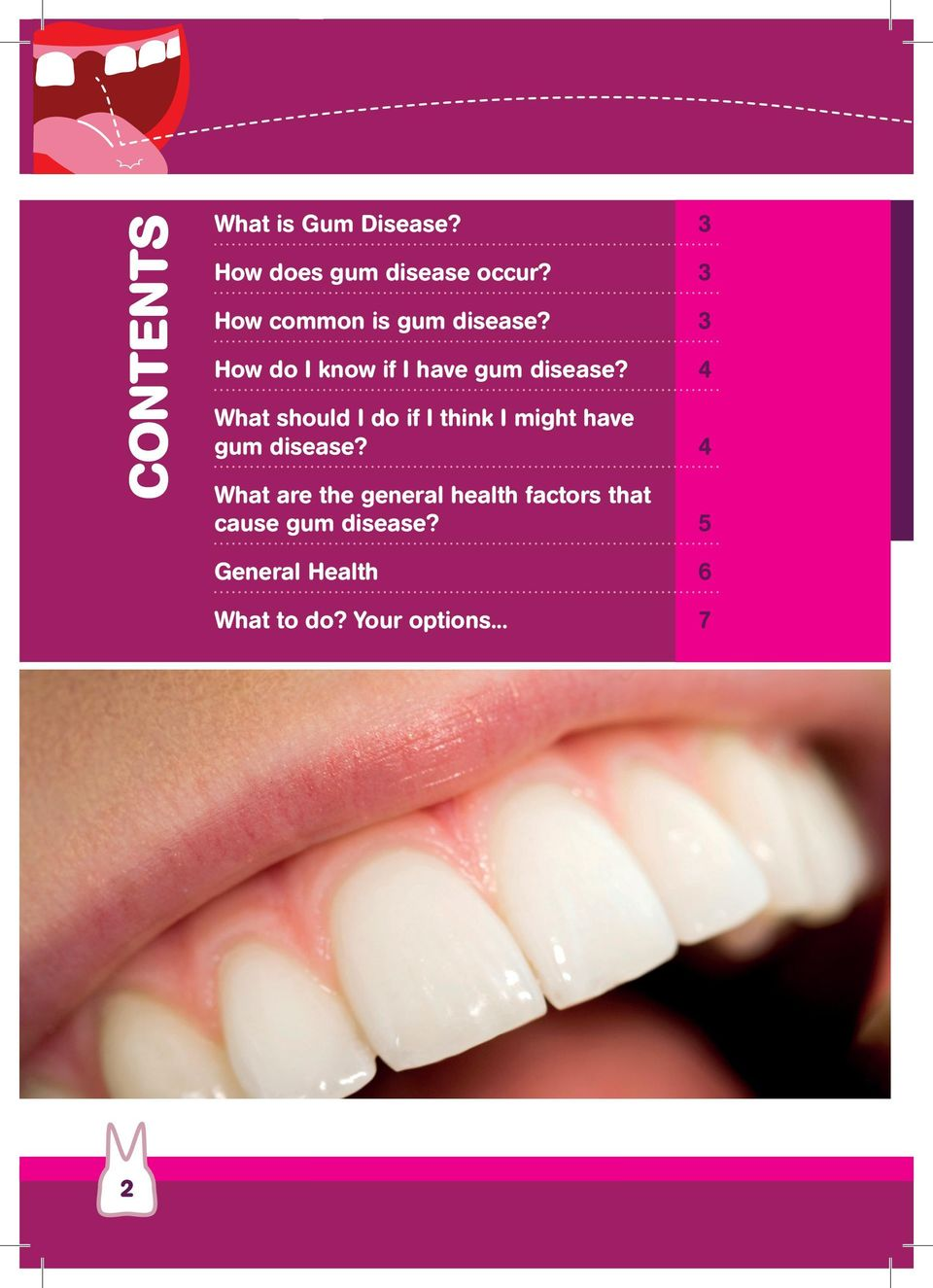4 What should I do if I think I might have gum disease?