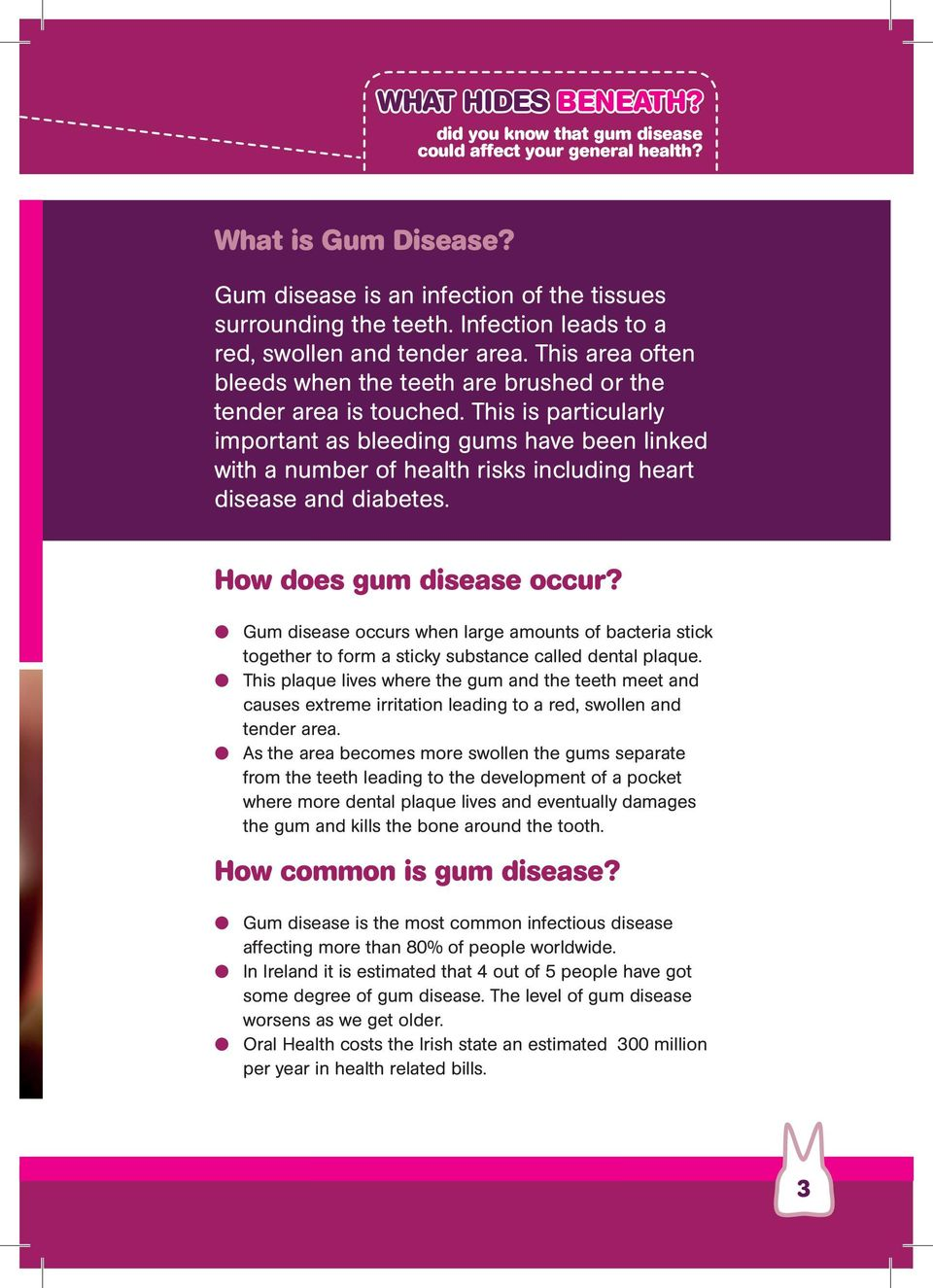 This is particularly important as bleeding gums have been linked with a number of health risks including heart disease and diabetes. How does gum disease occur?
