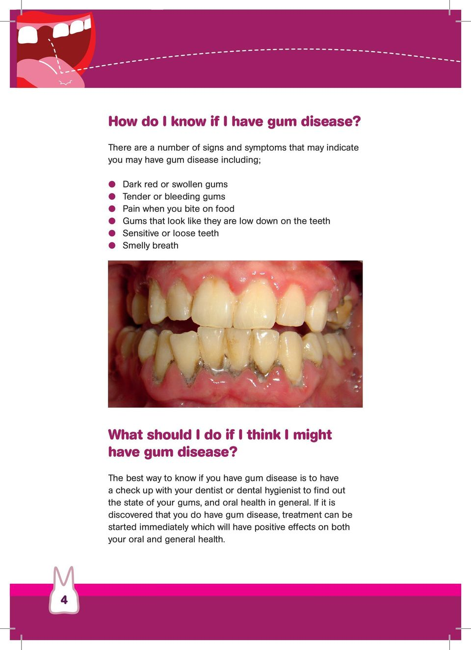 food Gums that look like they are low down on the teeth Sensitive or loose teeth Smelly breath What should I do if I think I might have gum disease?