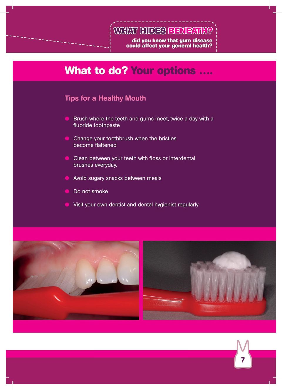 your toothbrush when the bristles become flattened Clean between your teeth with floss or interdental brushes