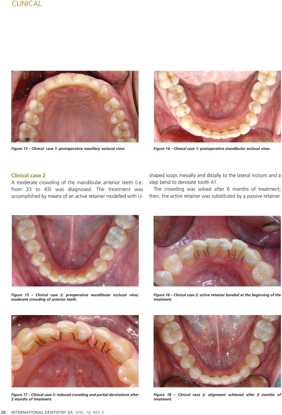 The treatment was accomplished by means of an active retainer modelled with U- shaped loops mesially and distally to the lateral incisors and a step bend to derotate tooth 41.