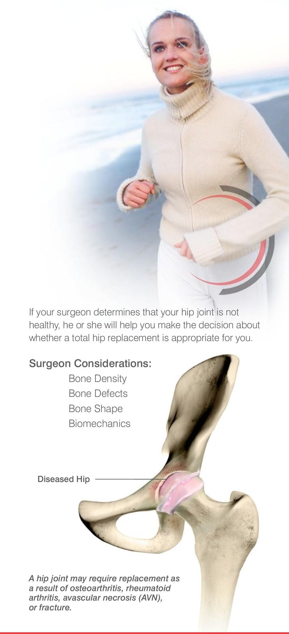 Surgeon Considerations: Bone Density Bone Defects Bone Shape Biomechanics Diseased Hip A hip