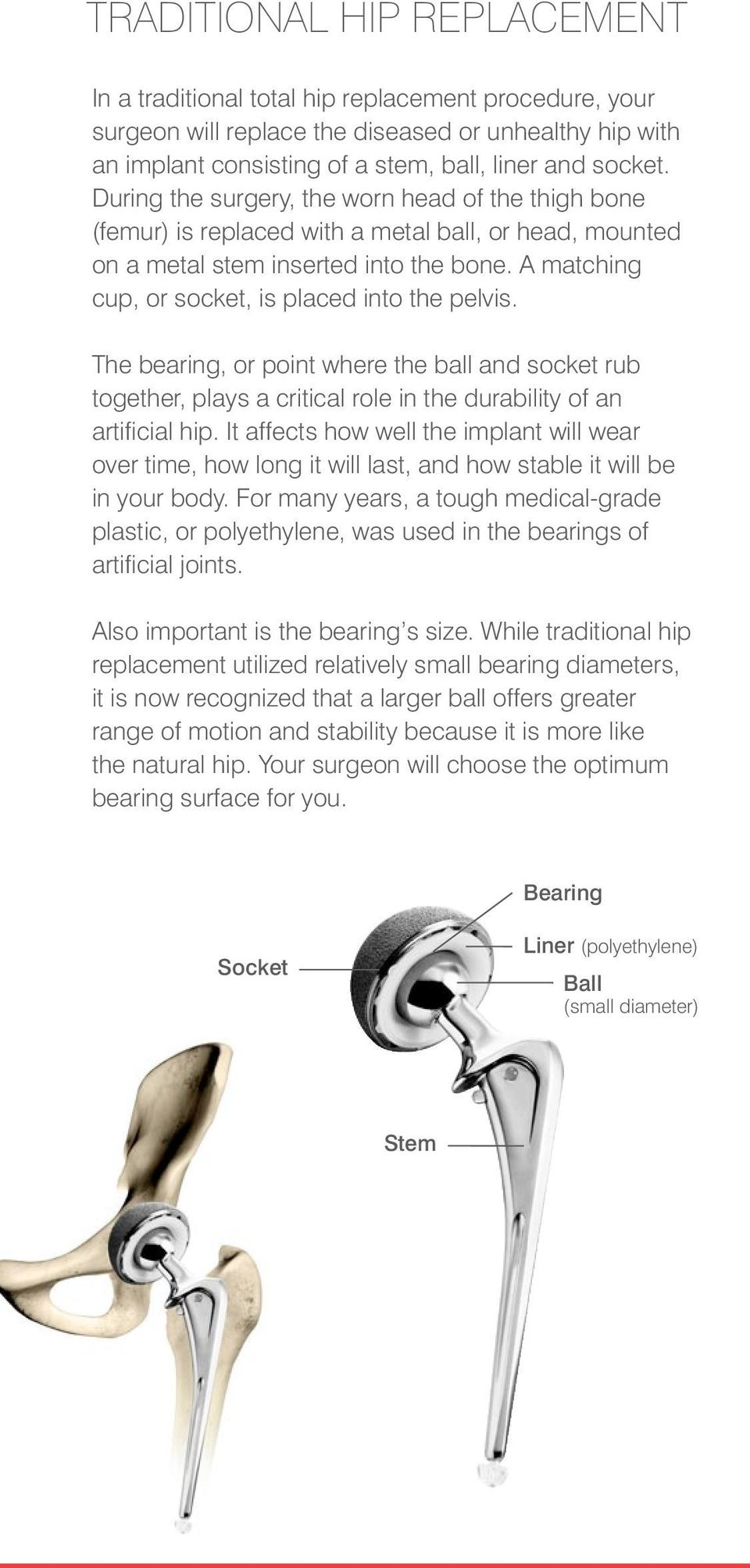 A matching cup, or socket, is placed into the pelvis. The bearing, or point where the ball and socket rub together, plays a critical role in the durability of an artificial hip.
