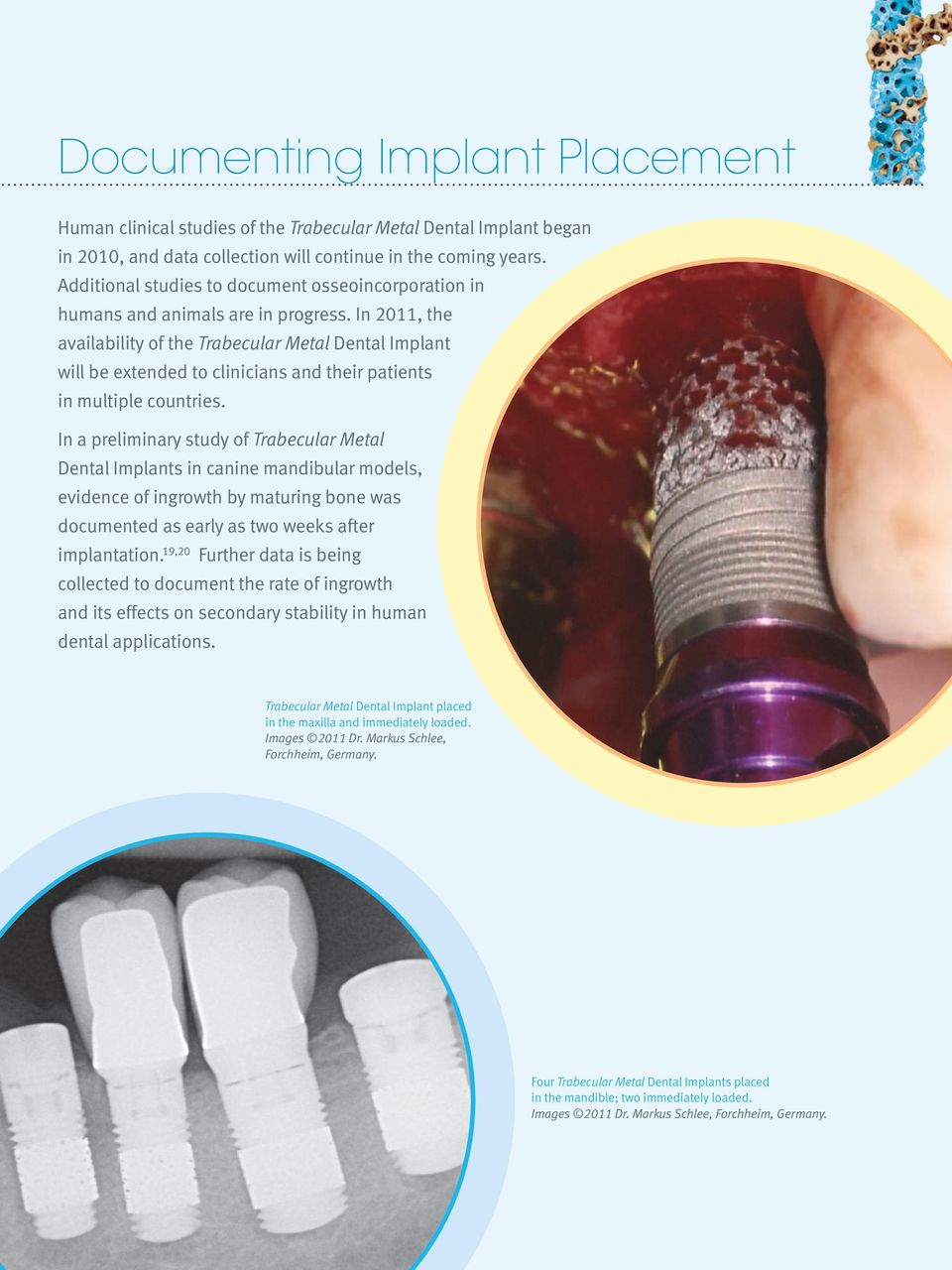 In 2011, the availability of the Trabecular Metal Dental Implant will be extended to clinicians and their patients in multiple countries.