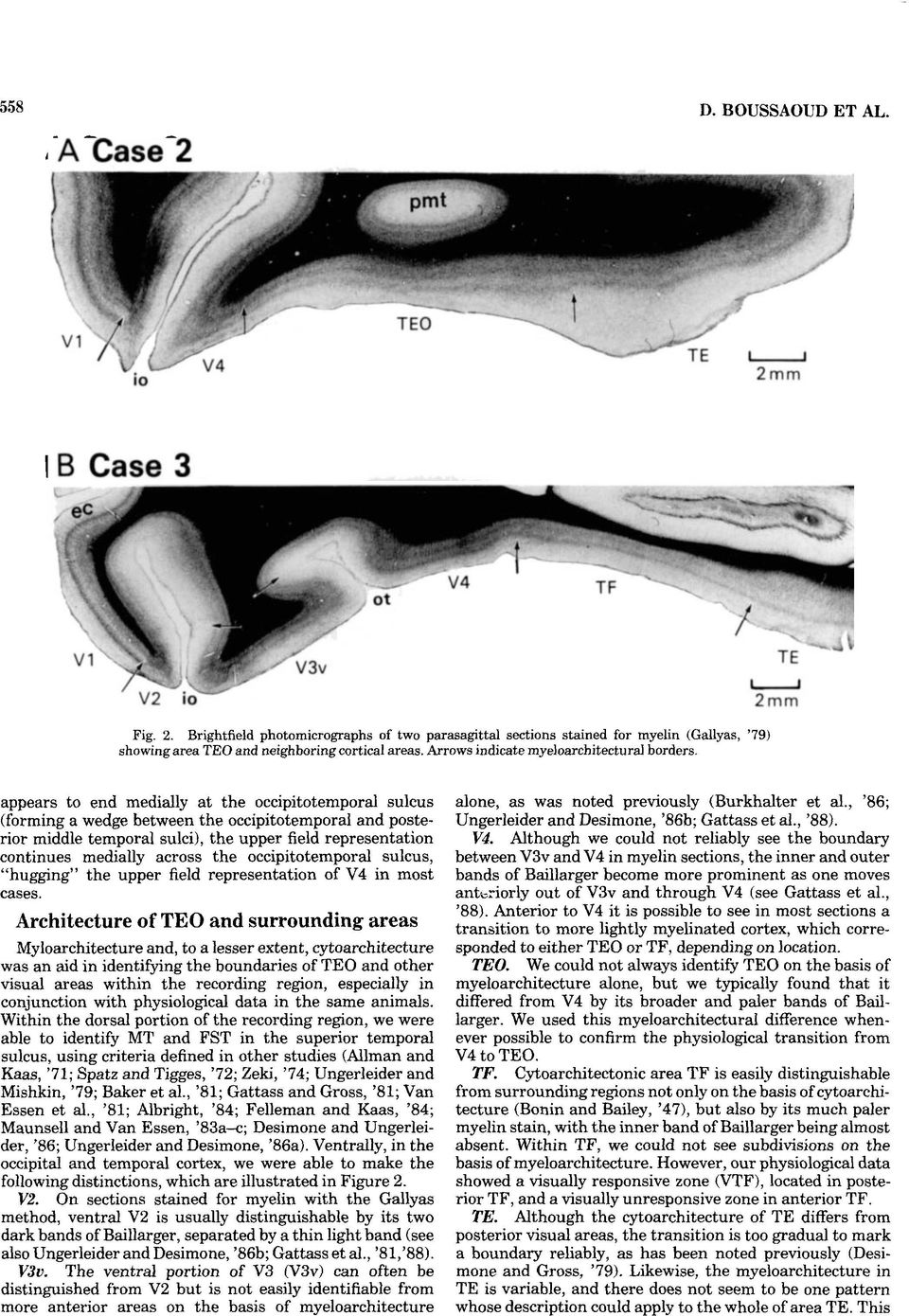 appears to end medially at the occipitotemporal sulcus (forming a wedge between the occipitotemporal and posterior middle temporal sulci), the upper field representation continues medially across the