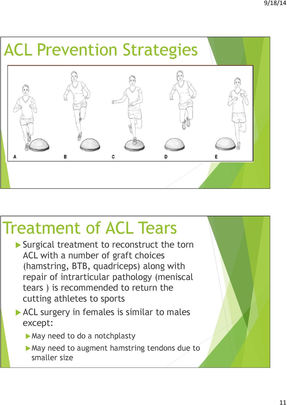 (meniscal tears ) is recommended to return the cutting athletes to sports u ACL surgery in females is
