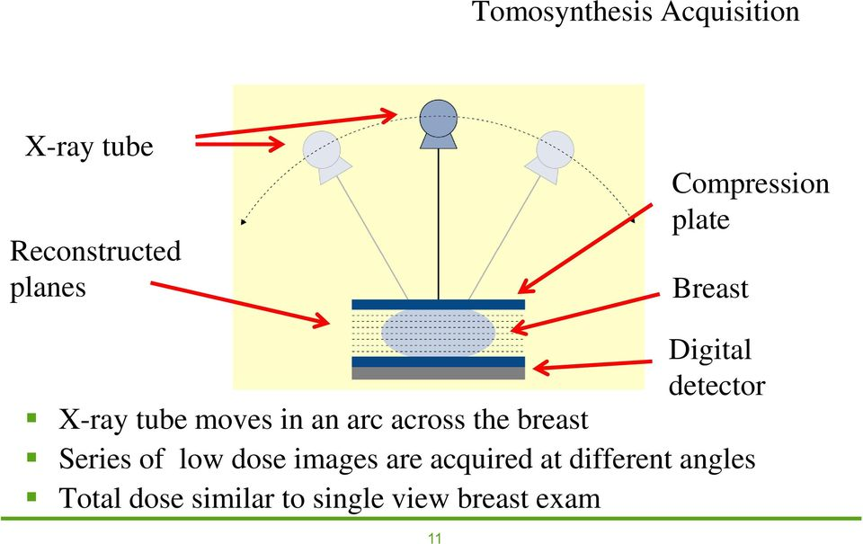 an arc across the breast Series of low dose images are