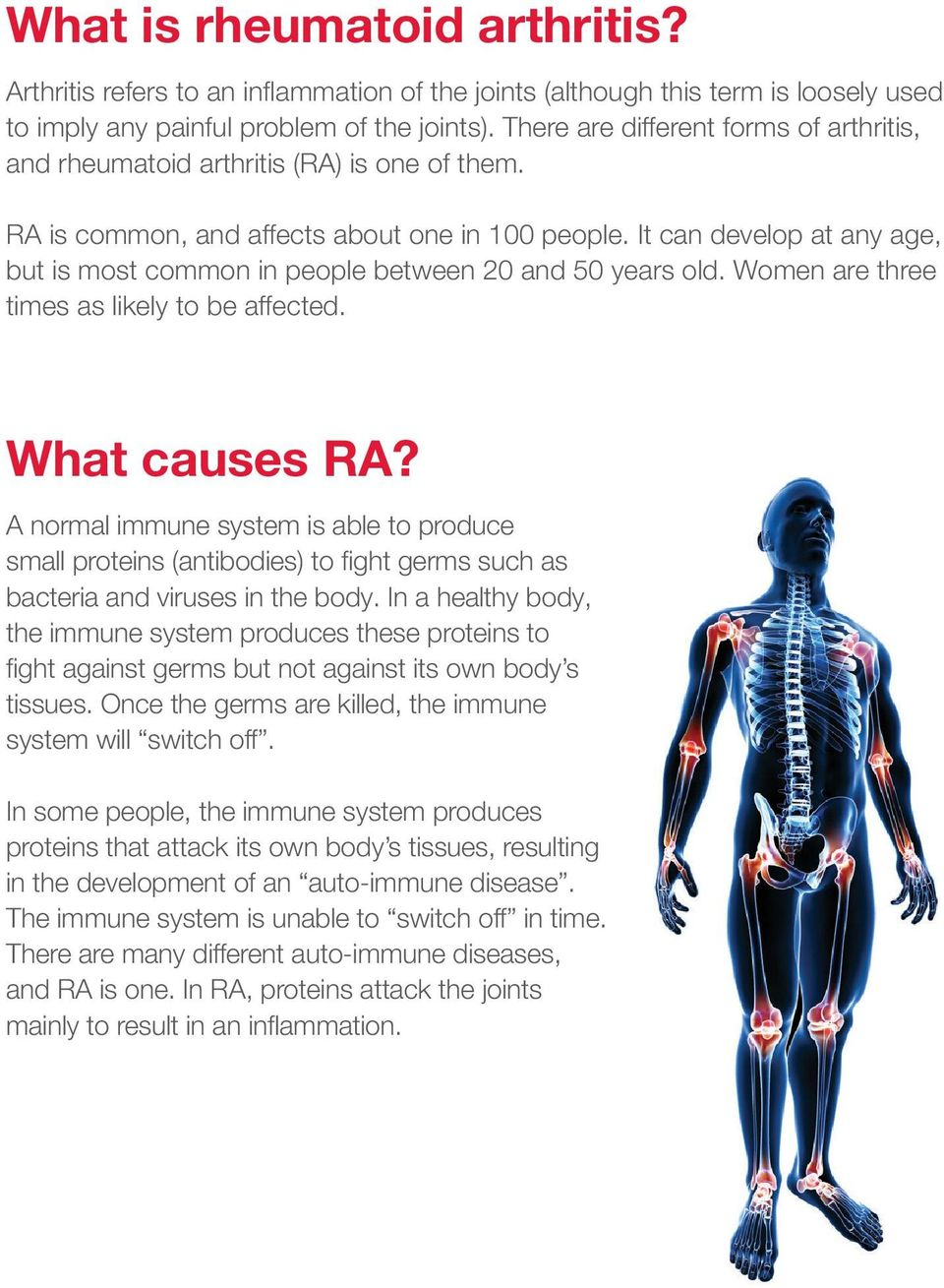 It can develop at any age, but is most common in people between 20 and 50 years old. Women are three times as likely to be affected. What causes RA?