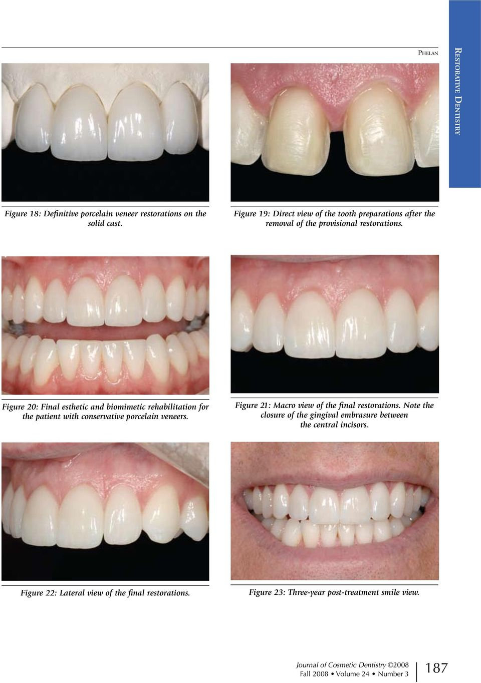 Figure 20: Final esthetic and biomimetic rehabilitation for the patient with conservative porcelain veneers.