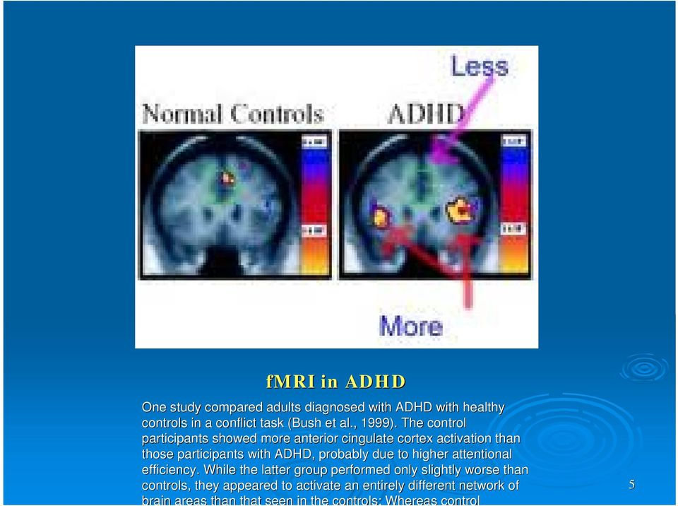 The control participants showed more anterior cingulate cortex activation than those participants with ADHD,
