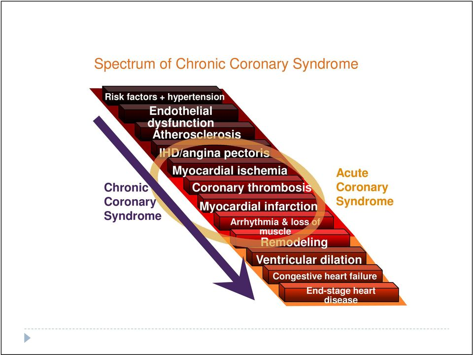ischemia Coronary thrombosis Myocardial infarction Arrhythmia & loss of muscle