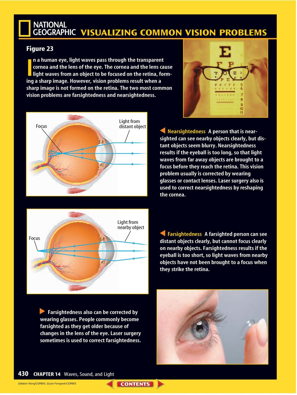 The two most common vision problems are farsightedness and nearsightedness.