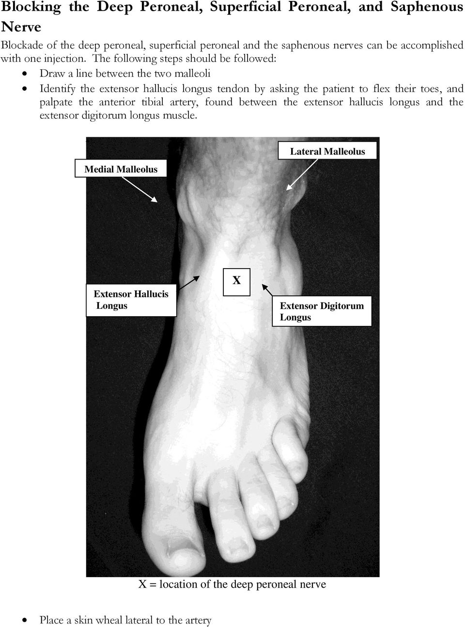 The following steps should be followed: Draw a line between the two malleoli Identify the extensor hallucis longus tendon by asking the patient to flex their