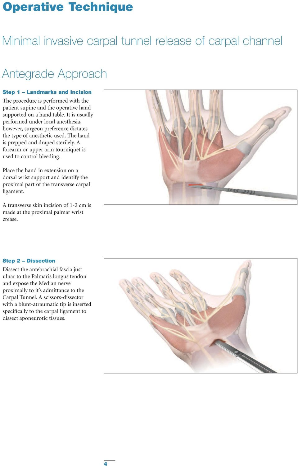 A forearm or upper arm tourniquet is used to control bleeding. Place the hand in extension on a dorsal wrist support and identify the proximal part of the transverse carpal ligament.