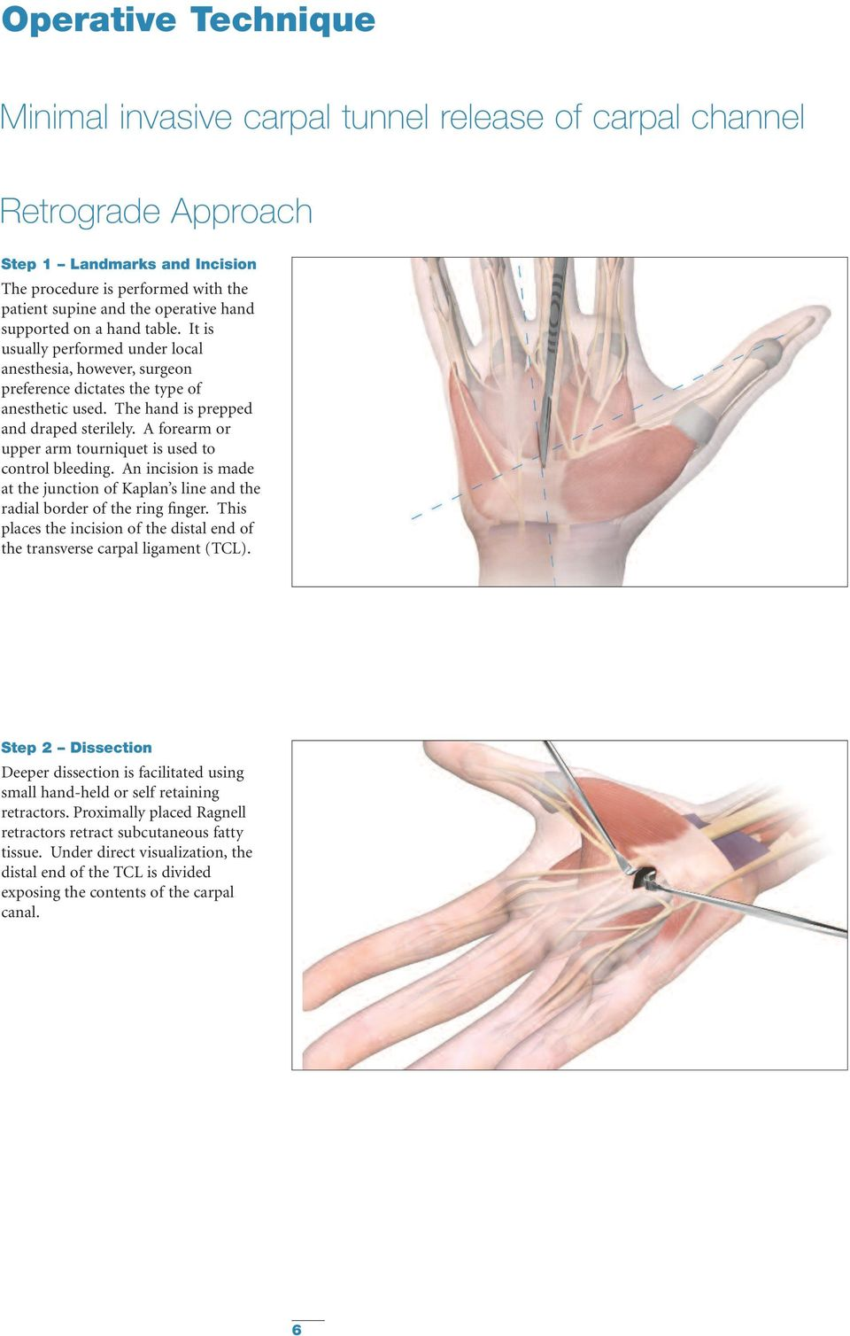 A forearm or upper arm tourniquet is used to control bleeding. An incision is made at the junction of Kaplan s line and the radial border of the ring finger.