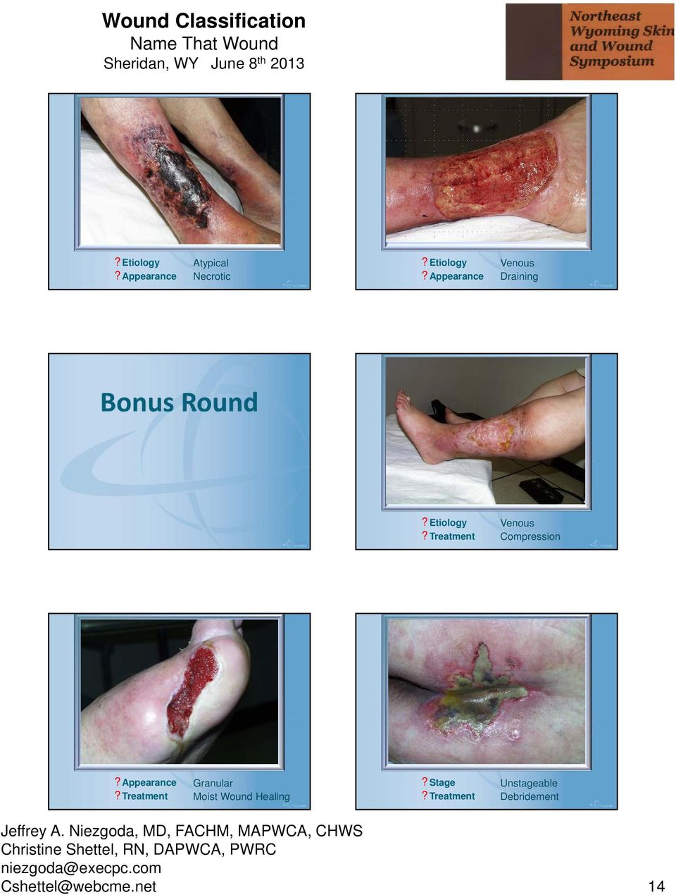 Treatment Granular Moist Wound Healing?