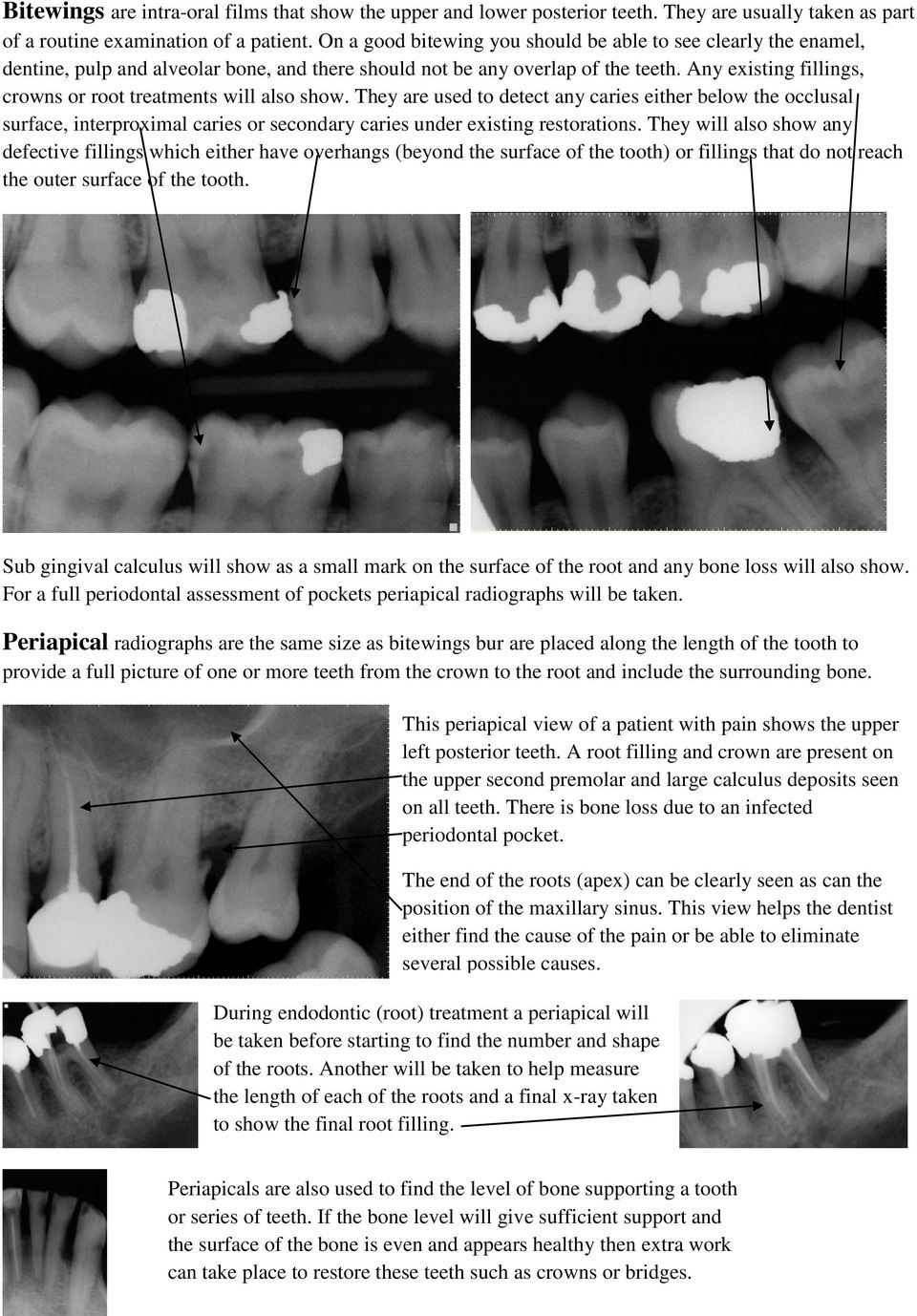 Any existing fillings, crowns or root treatments will also show.