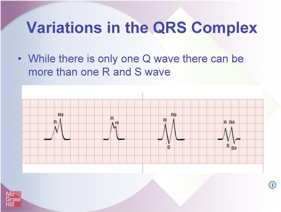 only one Q wave there can