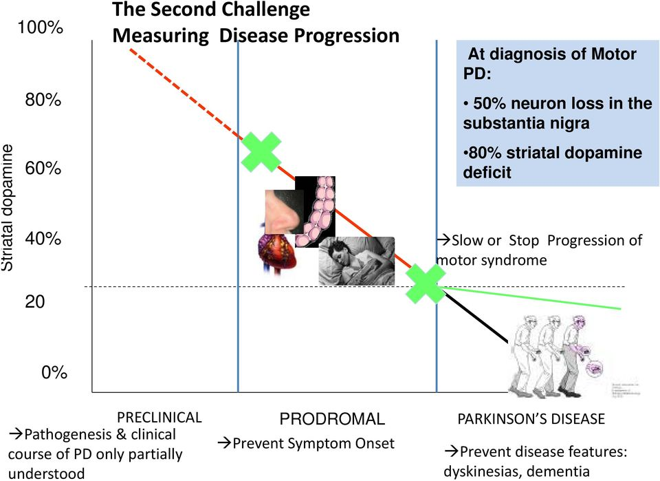 Progression of motor syndrome 20 0% PRECLINICAL Pathogenesis & clinical course of PD only partially