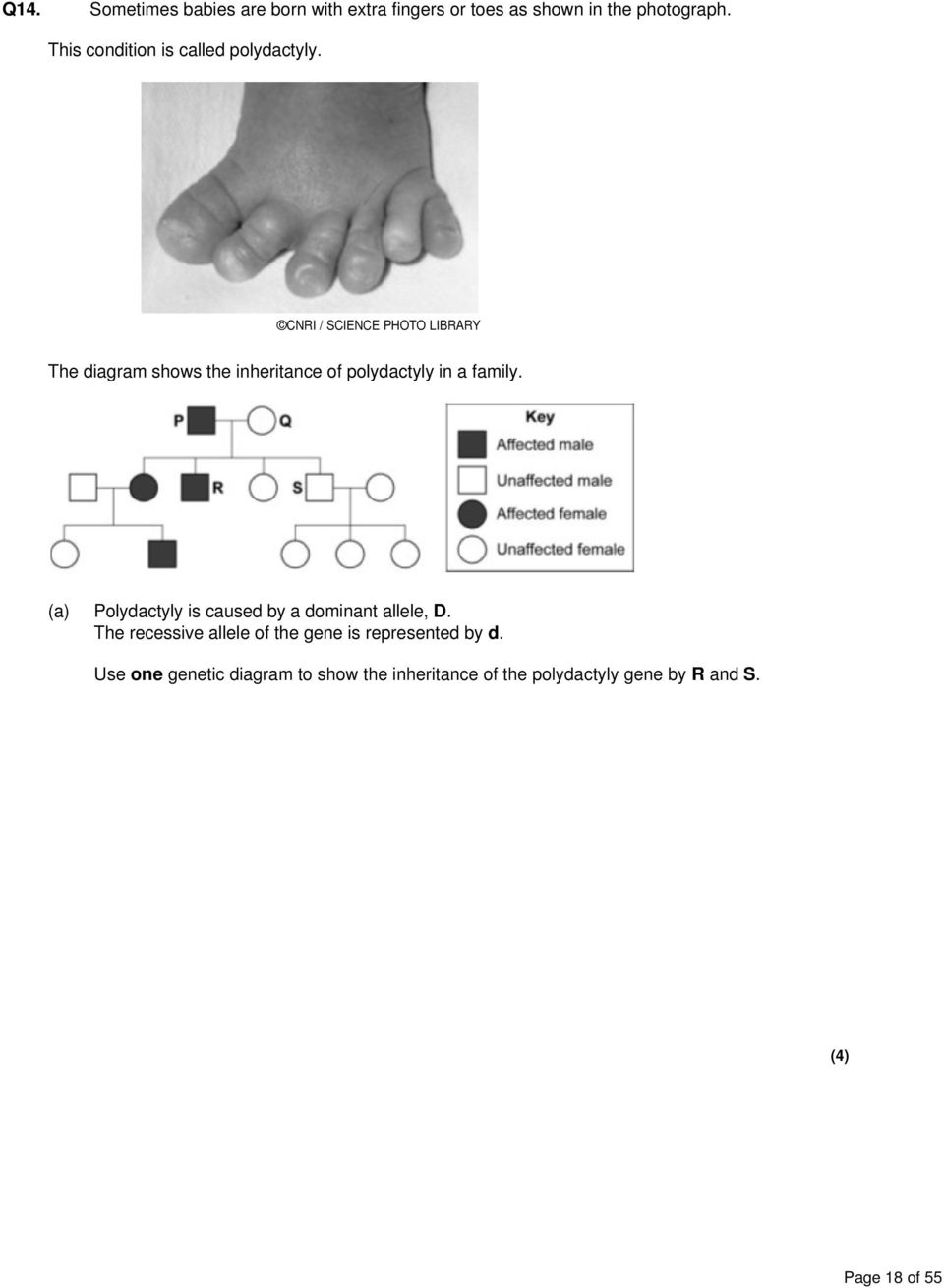 B2 5 inheritrance genetic crosses pdf cnri science photo library the diagram shows the inheritance of polydactyly in a family ccuart Image collections