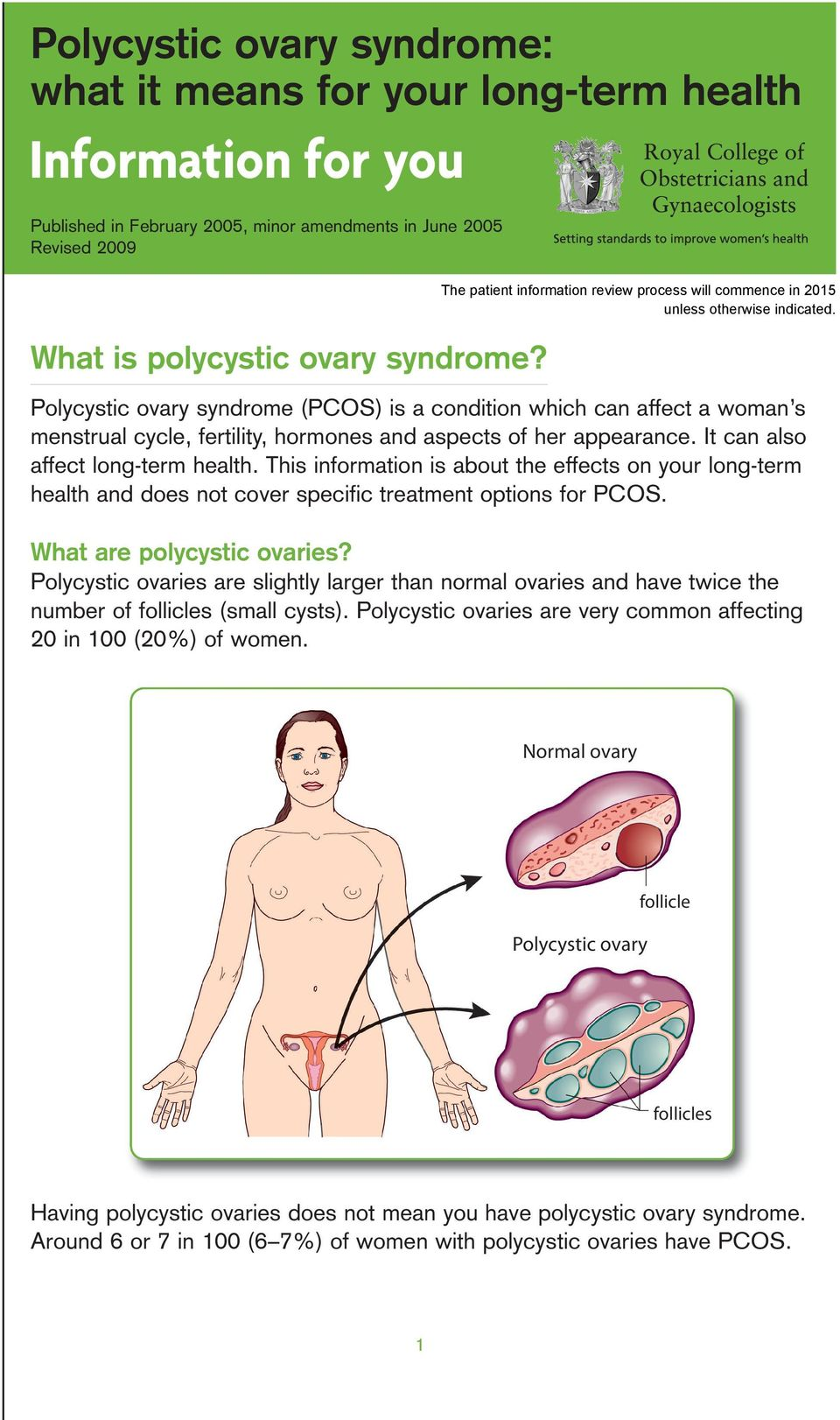 This information is about the effects on your long-term health and does not cover specific treatment options for PCOS. What are polycystic ovaries?