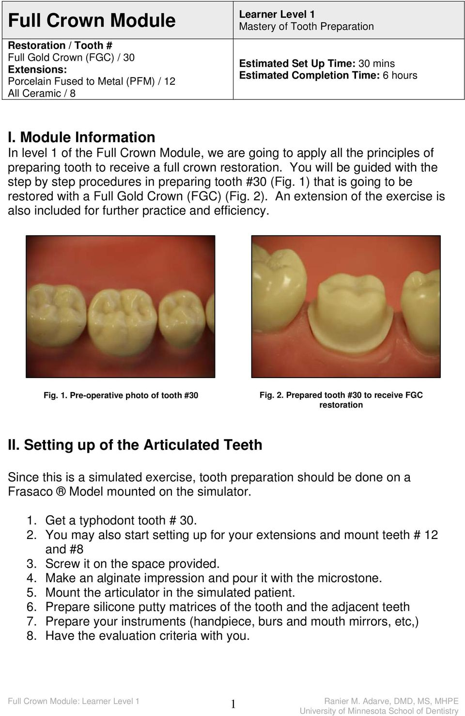 You will be guided with the step by step procedures in preparing tooth #30 (Fig. 1) that is going to be restored with a Full Gold Crown (FGC) (Fig. 2).