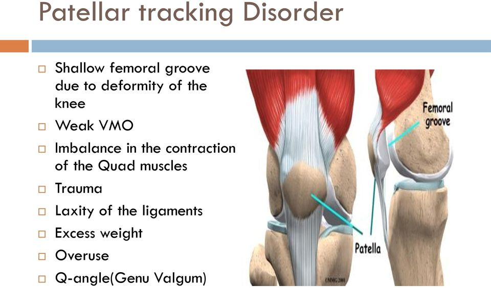 the contraction of the Quad muscles Trauma Laxity of
