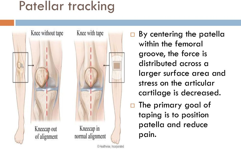 surface area and stress on the articular cartilage is