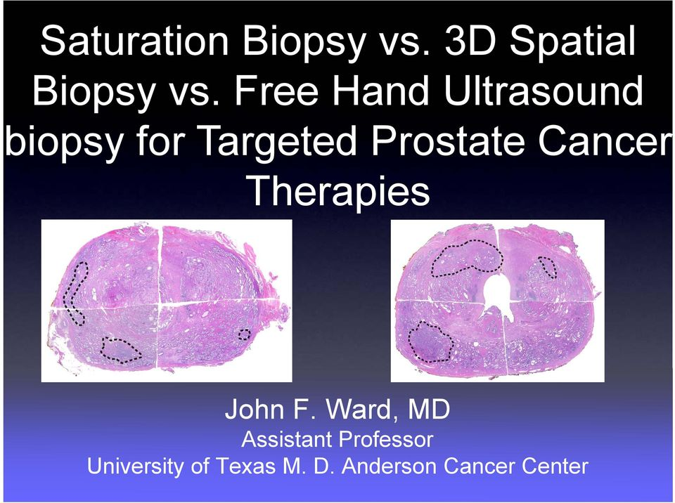 Prostate Cancer Therapies John F.