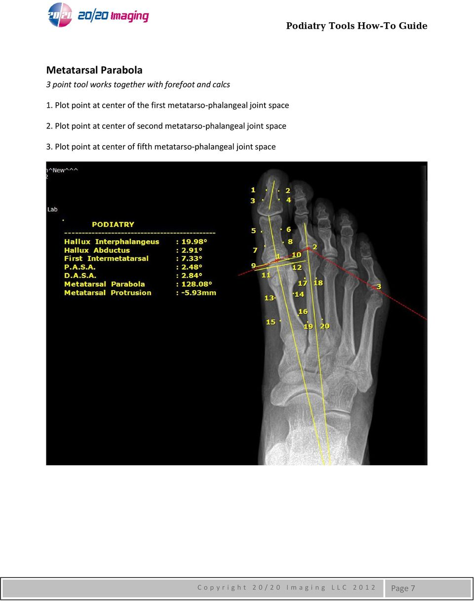 Plot point at center of second metatarso phalangeal joint space 3.