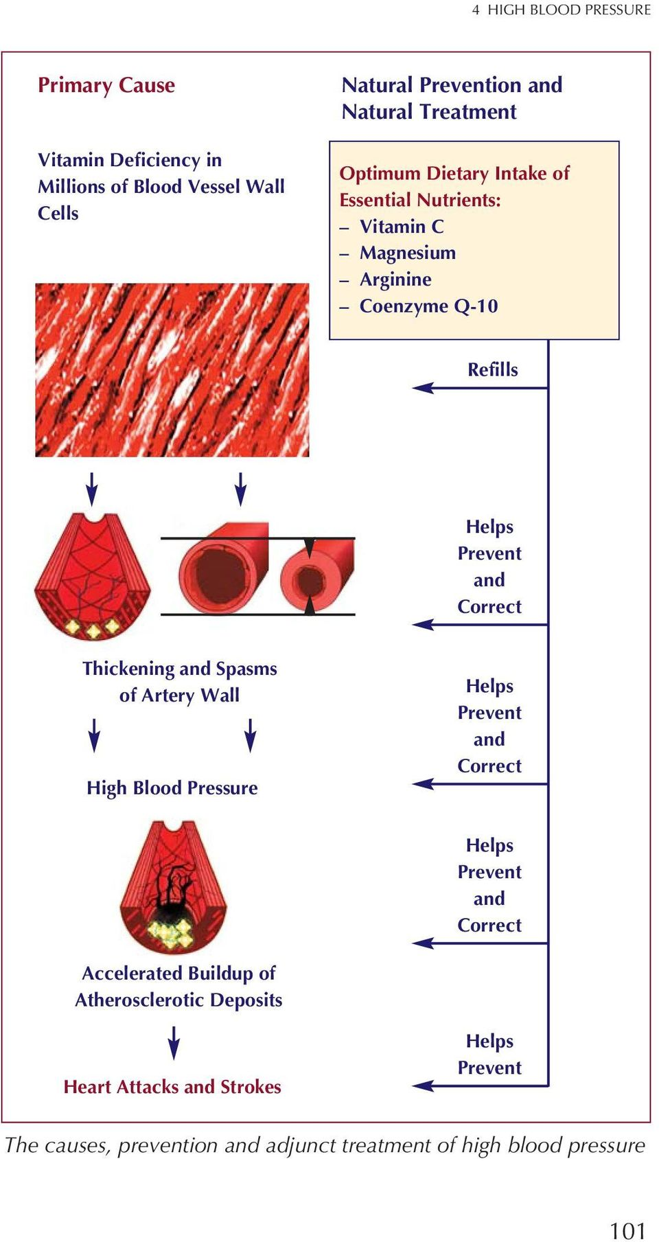 Correct Thickening and Spasms of Artery Wall High Blood Pressure Helps Prevent and Correct Helps Prevent and Correct Accelerated