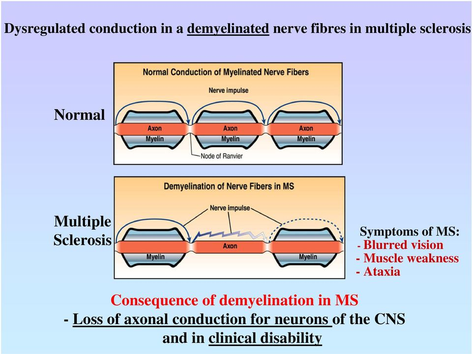-Muscle weakness -Ataxia Consequence of demyelination in MS - Loss