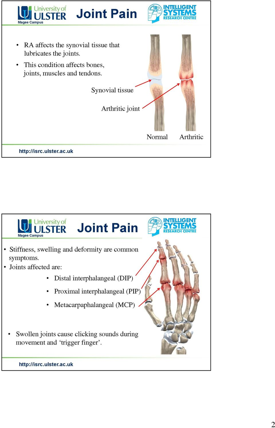 Synovial tissue Arthritic joint Normal Arthritic Joint Pain Stiffness, swelling and deformity are common