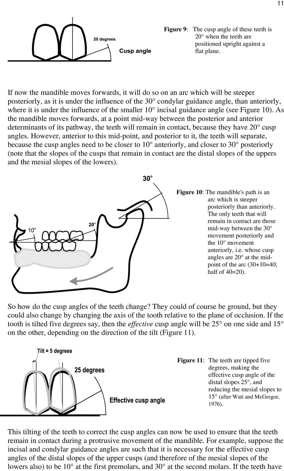 influence of the smaller 10 incisal guidance angle (see Figure 10).