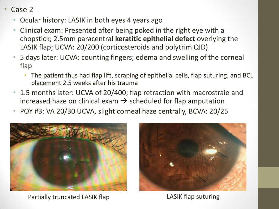 of the corneal flap The patient thus had flap lift, scraping of epithelial cells, flap suturing, and BCL placement 2.5 weeks after his trauma 1.