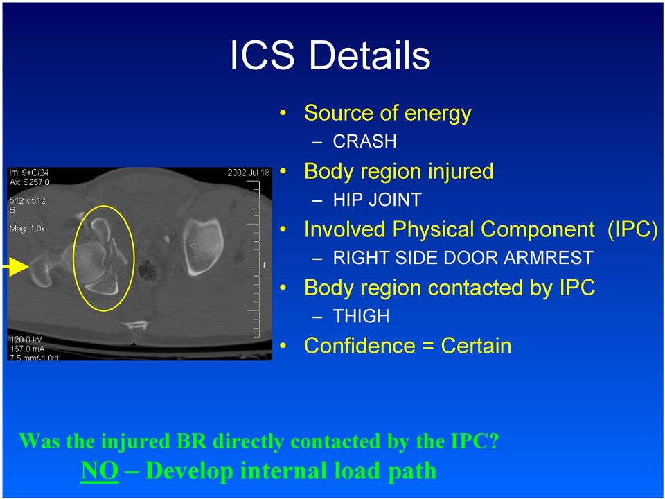 region contacted by IPC THIGH Confidence = Certain Was the