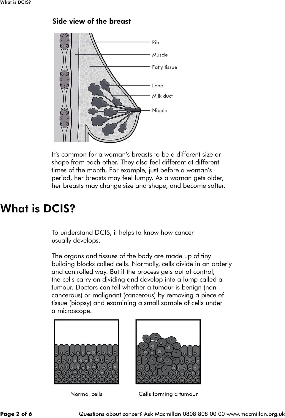 As a woman gets older, her breasts may change size and shape, and become softer. What is DCIS? To understand DCIS, it helps to know how cancer usually develops.