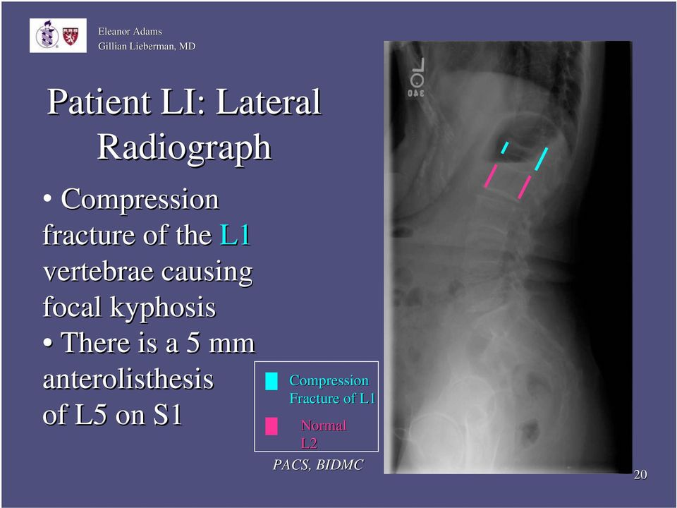 kyphosis There is a 5 mm anterolisthesis of L5