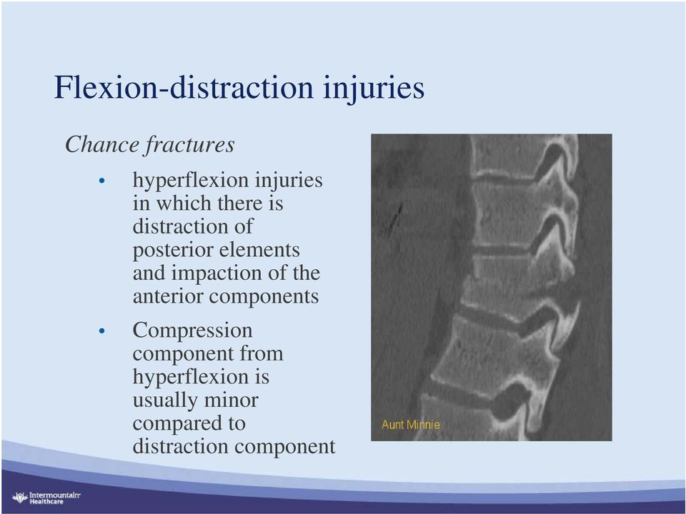 and impaction of the anterior components Compression component