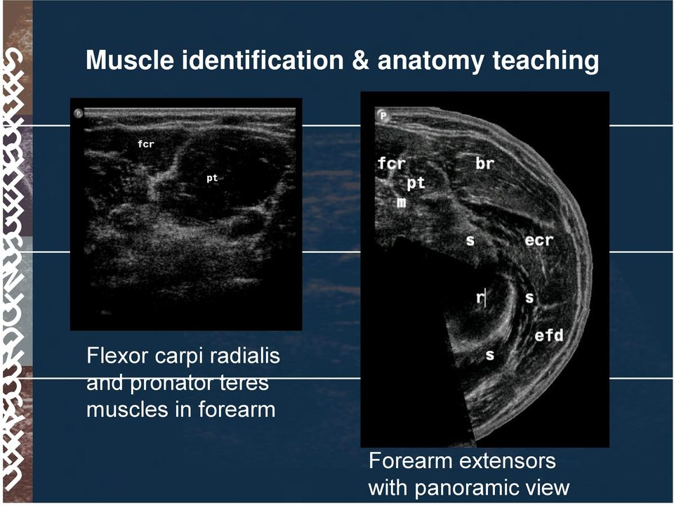 pronator teres muscles in forearm