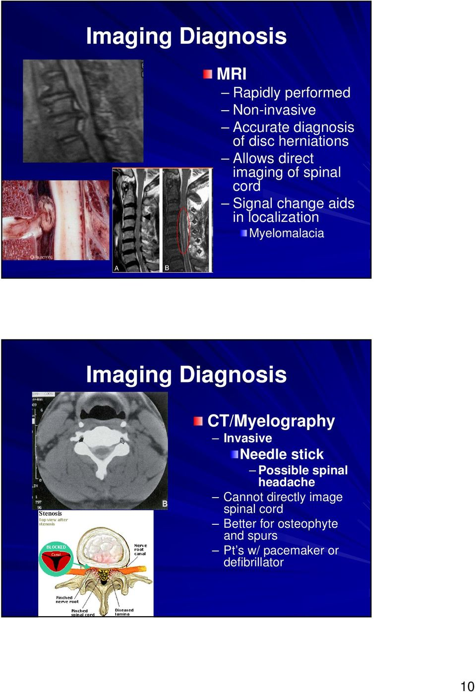 Myelomalacia Imaging Diagnosis CT/Myelography Invasive Needle stick Possible spinal