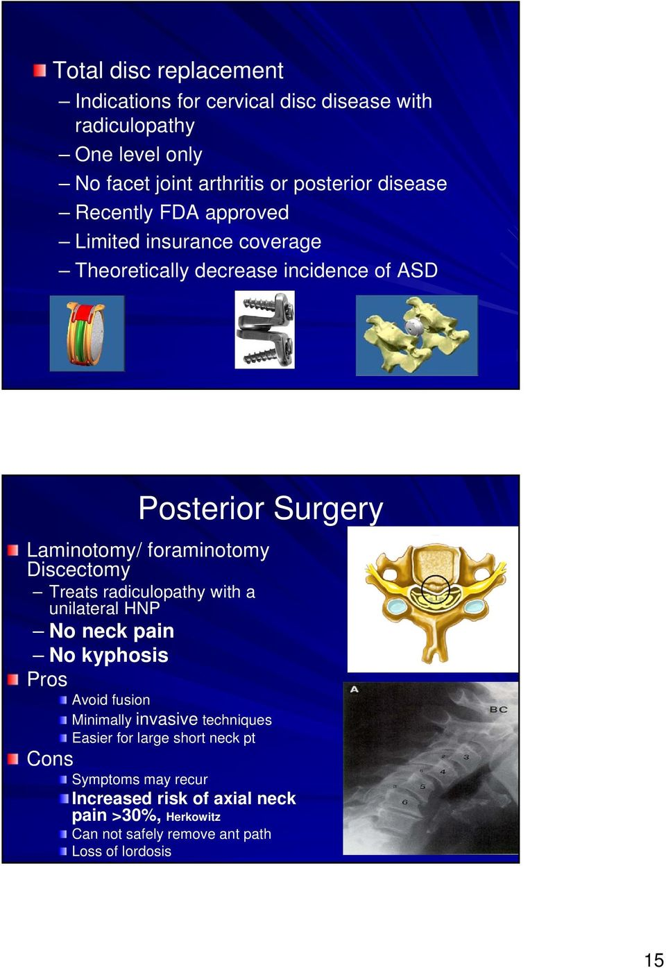 foraminotomy Discectomy Treats radiculopathy with a unilateral HNP No neck pain No kyphosis Pros Avoid fusion Minimally invasive