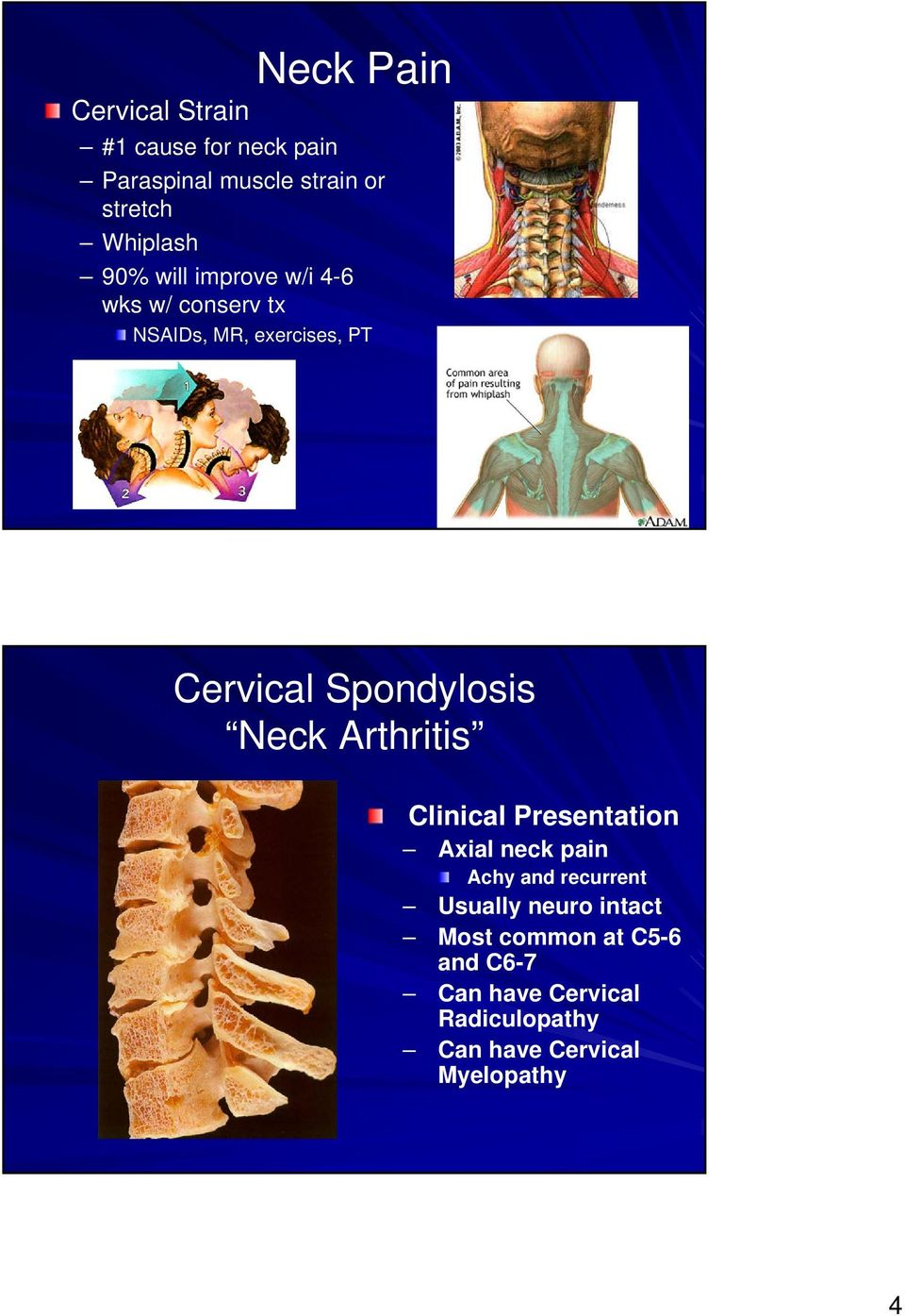 Spondylosis Neck Arthritis Clinical Presentation Axial neck pain Achy and recurrent Usually