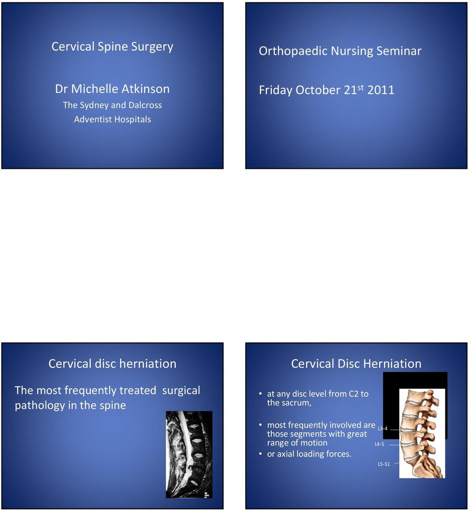 pathology in the spine Cervical Disc Herniation at any disc level from C2 to the sacrum, most frequently