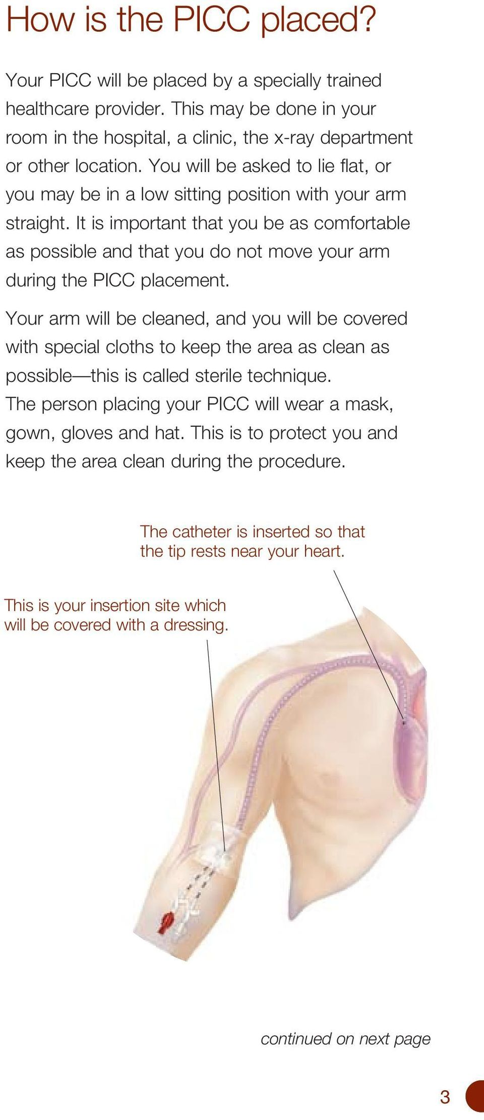 It is important that you be as comfortable as possible and that you do not move your arm during the PICC placement.