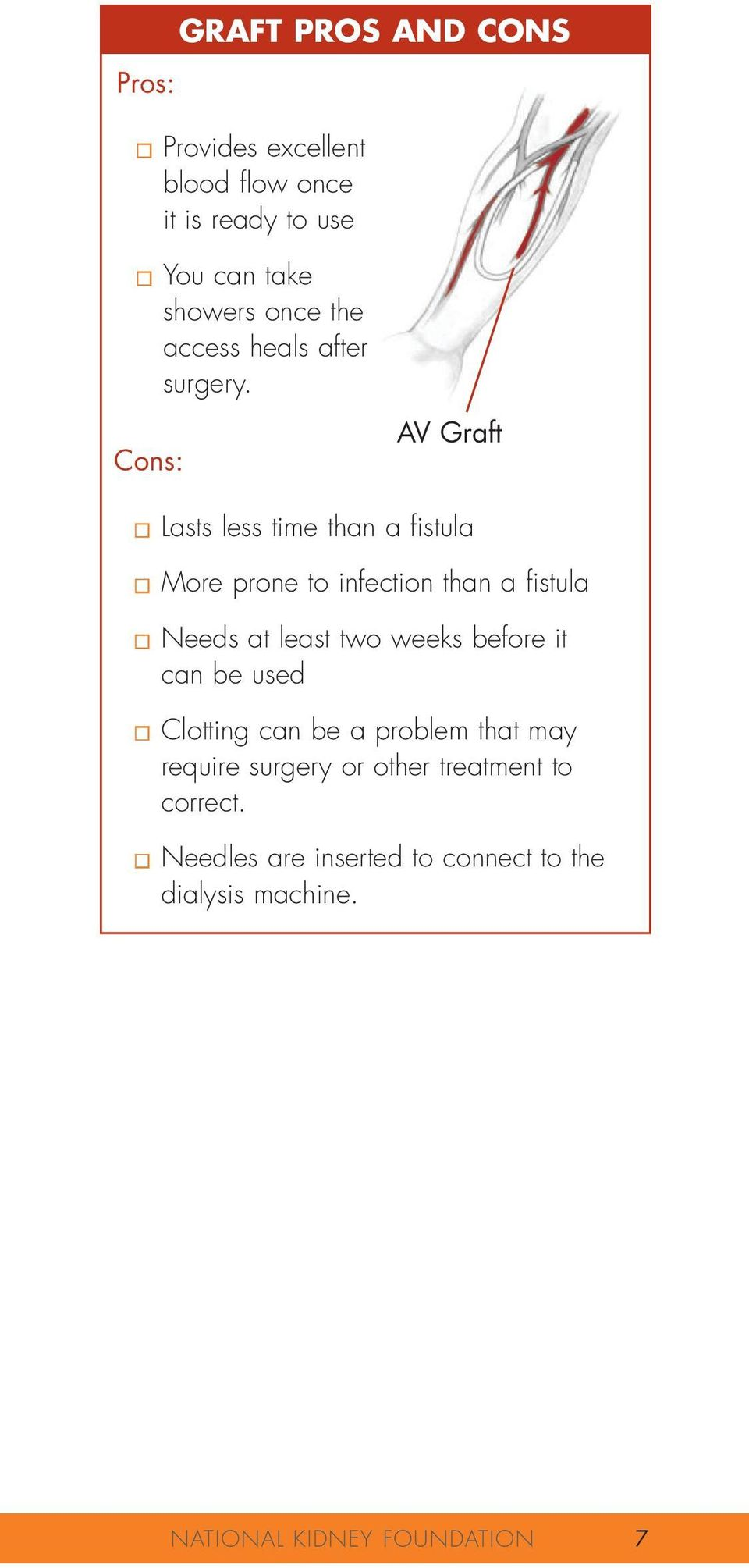 Cons: AV Graft Lasts less time than a fistula More prone to infection than a fistula Needs at least two weeks