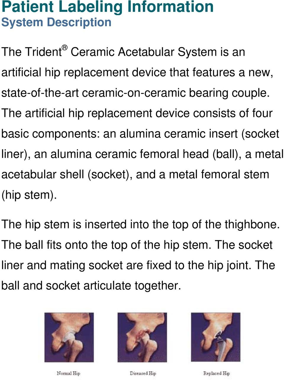 The artificial hip replacement device consists of four basic components: an alumina ceramic insert (socket liner), an alumina ceramic femoral head (ball), a
