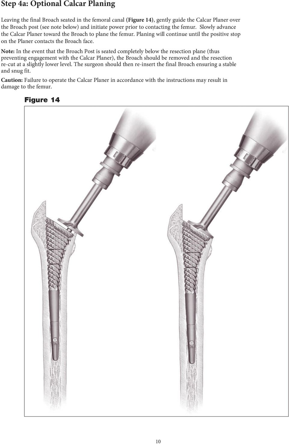 Note: In the event that the Broach Post is seated completely below the resection plane (thus preventing engagement with the Calcar Planer), the Broach should be removed and the resection re-cut at a