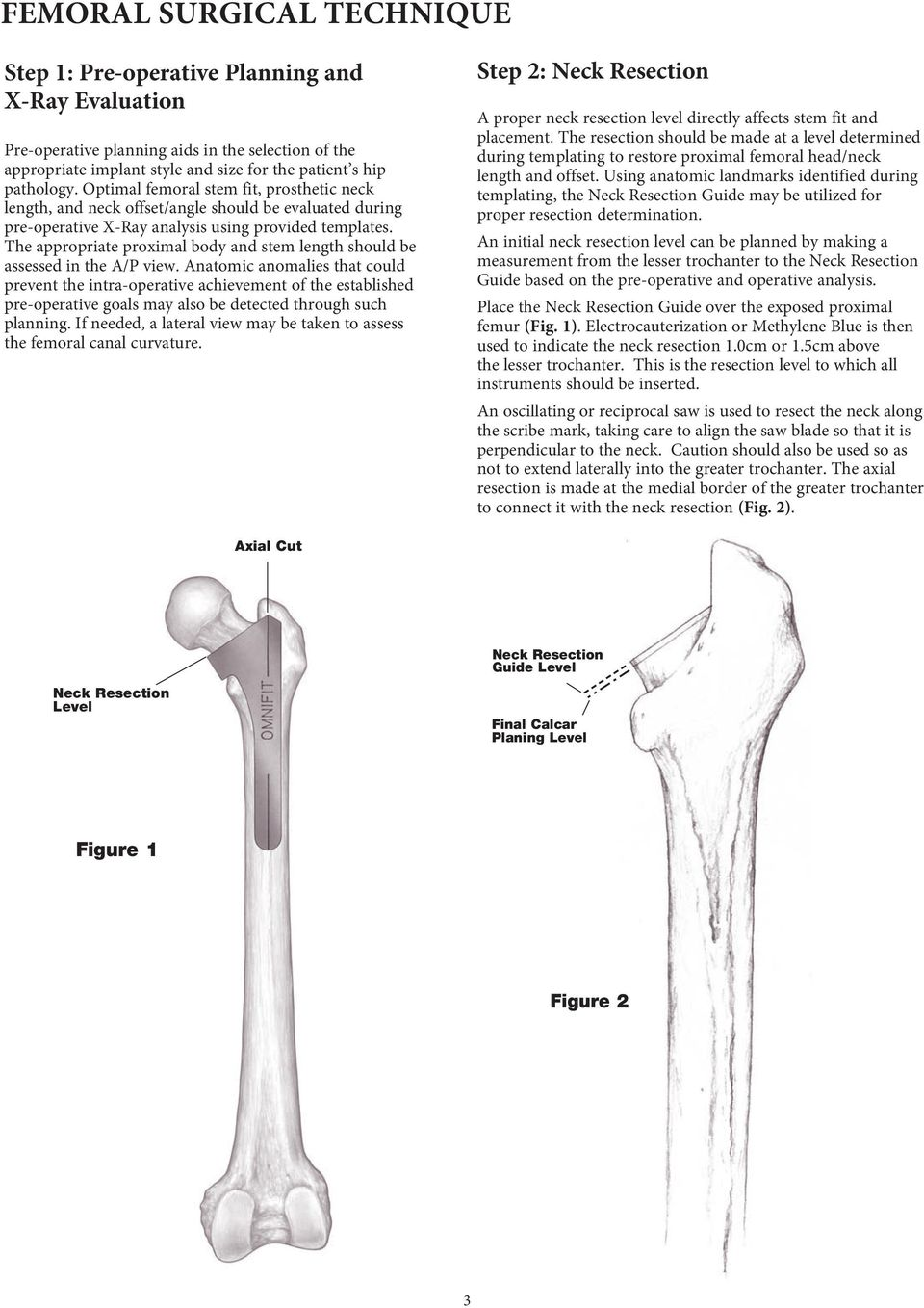 The appropriate proximal body and stem length should be assessed in the A/P view.